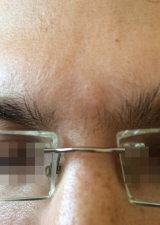<h5>Nevus (after treatment), patient No 77005</h5><p>This photo shows patient number 77005 after treatment. We applied HPDC homeopathic treatment medications which removed the nevus completely. Since no drugs or harmful chemicals were used, there were no side-effects or marks left on the affected area, or elsewhere. </p>