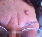 <h5>Nevus (before treatment), patient No 77006</h5><p>This photo shows patient number 77006 before treatment. The patient then went through our HPDC homeopathic nevus treatment for several sessions. </p>