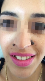 <h5>Nevus (before treatment), patient No 77003</h5><p>This photo shows patient number 77003 before treatment. The patient then went through our HPDC homeopathic nevus treatment for several sessions. </p>