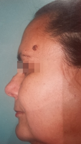 <h5>Nevus (before treatment), patient No 77004</h5><p>This photo shows patient number 77004 before treatment. The patient then went through our HPDC homeopathic nevus treatment for several sessions. </p>