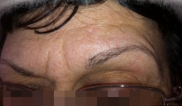 <h5>Nevus (after treatment), patient No 77006</h5><p>This photo shows patient number 77006 after treatment. We applied HPDC homeopathic treatment medications which removed the nevus completely. Since no drugs or harmful chemicals were used, there were no side-effects or marks left on the affected area, or elsewhere. </p>