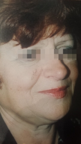<h5>Nevus (after treatment), patient No 77009</h5><p>This photo shows patient number 77009 after treatment. We applied HPDC homeopathic treatment medications which removed the nevus completely. Since no drugs or harmful chemicals were used, there were no side-effects or marks left on the affected area, or elsewhere. </p>