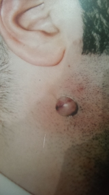 <h5>Nevus (before treatment), patient No 77011</h5><p>This photo shows patient number 77011 before treatment. The patient then went through our HPDC homeopathic nevus treatment for several sessions. </p>