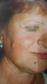<h5>Nevus (before treatment), patient No 77009</h5><p>This photo shows patient number 77009 before treatment. The patient then went through our HPDC homeopathic nevus treatment for several sessions. </p>