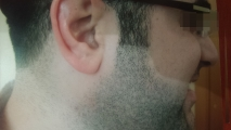 <h5>Nevus (after treatment), patient No 77011</h5><p>This photo shows patient number 77011 after treatment. We applied HPDC homeopathic treatment medications which removed the nevus completely. Since no drugs or harmful chemicals were used, there were no side-effects or marks left on the affected area, or elsewhere. </p>
