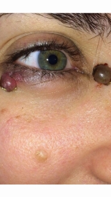 <h5>Nevus (before treatment), patient No 77013</h5><p>This photo shows patient number 77013 before treatment. The patient then went through our HPDC homeopathic nevus treatment for several sessions. </p>