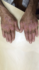 <h5>Psoriasis (after treatment), patient No 77002</h5><p>This photo shows patient number 77002 after treatment. We applied HPDC homeopathic treatment medications which removed the psoriasis completely. Since no drugs or harmful chemicals were used, there were no side-effects or marks left on the affected area, or elsewhere. </p>