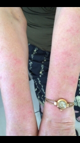 <h5>Psoriasis (after treatment), patient No 77003</h5><p>This photo shows patient number 77003 after treatment. We applied HPDC homeopathic treatment medications which removed the psoriasis completely. Since no drugs or harmful chemicals were used, there were no side-effects or marks left on the affected area, or elsewhere. </p>