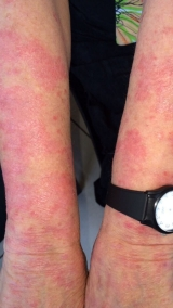 <h5>Psoriasis (before treatment), patient No 77003</h5><p>This photo shows patient number 77003 before treatment. The patient then went through our HPDC homeopathic psoriasis treatment for several sessions. </p>