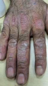 <h5>Psoriasis (before treatment), patient No 77002</h5><p>This photo shows patient number 77002 before treatment. The patient then went through our HPDC homeopathic psoriasis treatment for several sessions. </p>