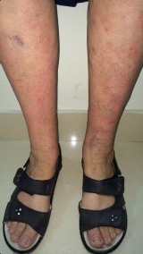 <h5>Psoriasis (after treatment), patient No 77005</h5><p>This photo shows patient number 77005 after treatment. We applied HPDC homeopathic treatment medications which removed the psoriasis completely. Since no drugs or harmful chemicals were used, there were no side-effects or marks left on the affected area, or elsewhere. </p>