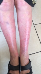 <h5>Psoriasis (before treatment), patient No 77005</h5><p>This photo shows patient number 77005 before treatment. The patient then went through our HPDC homeopathic psoriasis treatment for several sessions. </p>