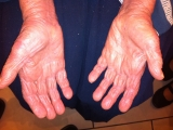 <h5>Psoriasis (after treatment), patient No 77007</h5><p>This photo shows patient number 77007 after treatment. We applied HPDC homeopathic treatment medications which removed the psoriasis completely. Since no drugs or harmful chemicals were used, there were no side-effects or marks left on the affected area, or elsewhere. </p>