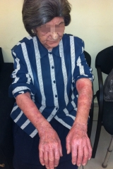 <h5>Psoriasis (before treatment), patient No 77007</h5><p>This photo shows patient number 77007 before treatment. The patient then went through our HPDC homeopathic psoriasis treatment for several sessions. </p>