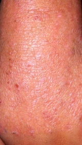 <h5>Psoriasis (after treatment), patient No 77004</h5><p>This photo shows patient number 77004 after treatment. We applied HPDC homeopathic treatment medications which removed the psoriasis completely. Since no drugs or harmful chemicals were used, there were no side-effects or marks left on the affected area, or elsewhere. </p>