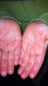 <h5>Psoriasis (after treatment), patient No 77006</h5><p>This photo shows patient number 77006 after treatment. We applied HPDC homeopathic treatment medications which removed the psoriasis completely. Since no drugs or harmful chemicals were used, there were no side-effects or marks left on the affected area, or elsewhere. </p>