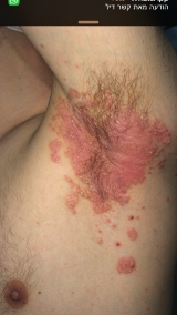 <h5>Psoriasis (before treatment), patient No 77009</h5><p>This photo shows patient number 77009 before treatment. The patient then went through our HPDC homeopathic psoriasis treatment for several sessions. </p>