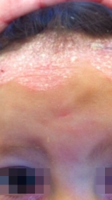 <h5>Psoriasis (before treatment), patient No 77011</h5><p>This photo shows patient number 77011 before treatment. The patient then went through our HPDC homeopathic psoriasis treatment for several sessions. </p>