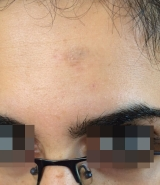 <h5>Skin growth (after treatment), patient No 77002</h5><p>This photo shows patient number 77002 after treatment. We applied HPDC homeopathic treatment medications which removed the skin growth completely. Since no drugs or harmful chemicals were used, there were no side-effects or marks left on the affected area, or elsewhere. </p>