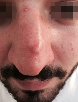 <h5>Skin growth (before treatment), patient No 77003</h5><p>This photo shows patient number 77003 before treatment. The patient then went through our HPDC homeopathic skin growth treatment for several sessions. </p>