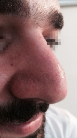 <h5>Skin growth (after treatment), patient No 77003</h5><p>This photo shows patient number 77003 after treatment. We applied HPDC homeopathic treatment medications which removed the skin growth completely. Since no drugs or harmful chemicals were used, there were no side-effects or marks left on the affected area, or elsewhere. </p>
