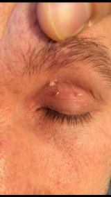 <h5>Skin Tag (before treatment), patient No 77001</h5><p>This photo shows patient number 77001 before treatment. The patient then went through our HPDC homeopathic skin tag treatment for several sessions. </p>