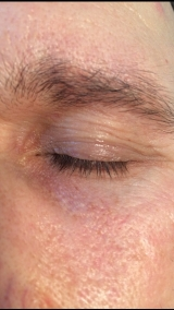 <h5>Skin Tag (after treatment), patient No 77001</h5><p>This photo shows patient number 77001 after treatment. We applied HPDC homeopathic treatment medications which removed the skin tag completely. Since no drugs or harmful chemicals were used, there were no side-effects or marks left on the affected area, or elsewhere. </p>