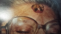 <h5>Squamous Cell Carcinoma (before treatment), patient No 77001</h5><p>This photo shows patient number 77001 before treatment. The patient then went through our HPDC homeopathic squamous cell carcinoma treatment for several sessions. </p>