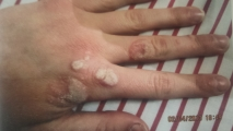 <h5>Warts (before treatment), patient No 77003</h5><p>This photo shows patient number 77003 before treatment. The patient then went through our HPDC homeopathic warts treatment for several sessions. </p>
