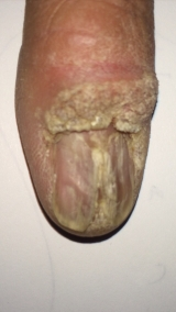<h5>Warts (before treatment), patient No 77004</h5><p>This photo shows patient number 77004 before treatment. The patient then went through our HPDC homeopathic warts treatment for several sessions. </p>