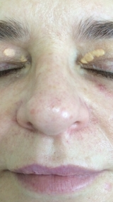 <h5>Xanthelasma (before treatment), patient No 77002</h5><p>This photo shows patient number 77002 before treatment. The patient then went through our HPDC homeopathic Xanthelasma treatment for several sessions. </p>