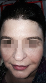 <h5>Xanthelasma (after treatment), patient No 77002</h5><p>This photo shows patient number 77002 after treatment. We applied HPDC homeopathic treatment medications which removed the Xanthelasma completely. Since no drugs or harmful chemicals were used, there were no side-effects or marks left on the affected area, or elsewhere. </p>