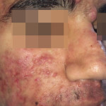 London-Acne-Treatment-002-before-1