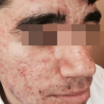 London-Acne-Treatment-002-before-after-1
