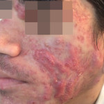 London-Acne-Treatment-002-before2-1