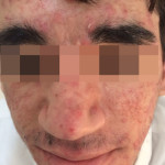 London-Acne-Treatment-002-before3-1