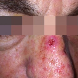 London-Basal-Cell-Carcinoma-001-before-1