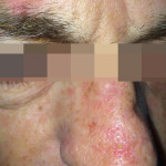 London-Basal-Cell-Carcinoma-001-before-after-1