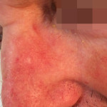 London-Basal-Cell-Carcinoma-002-before-after-1