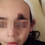 London-Birthmark-Removal-ID77003-Before-20160128a1