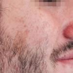 London-Birthmark-removal-004-before-1