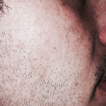 London-Birthmark-removal-004-before-after-1