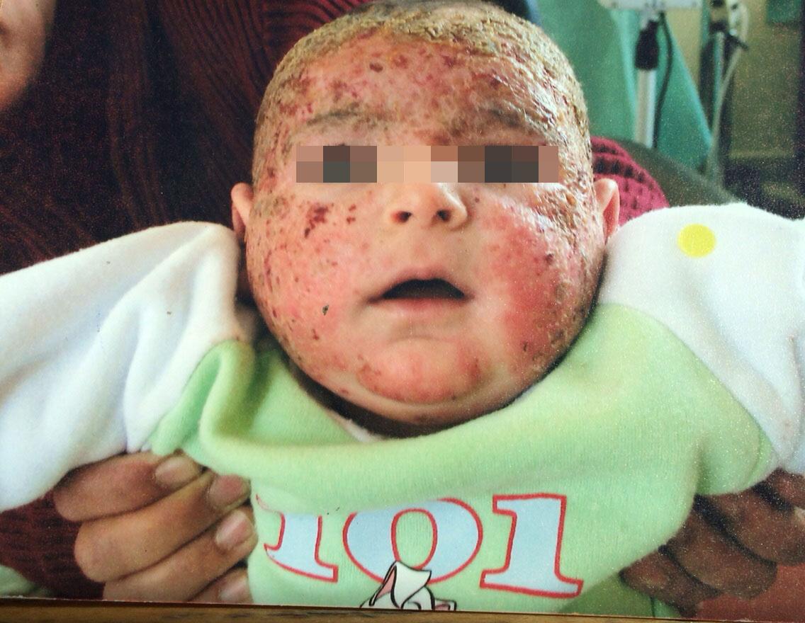 London-Dermatitis-treatment-001-before-1