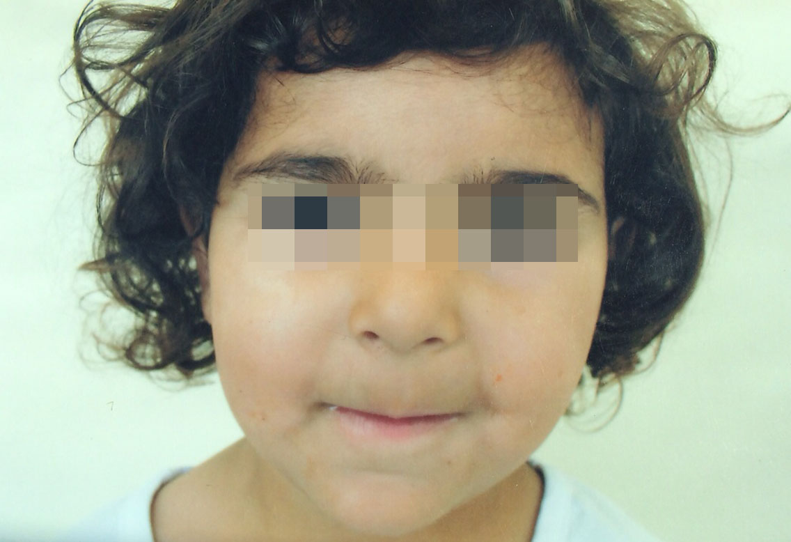 London-Dermatitis-treatment-001-before-after-3-years-1