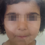 London-Dermatitis-treatment-001-before-after-3-years1-1