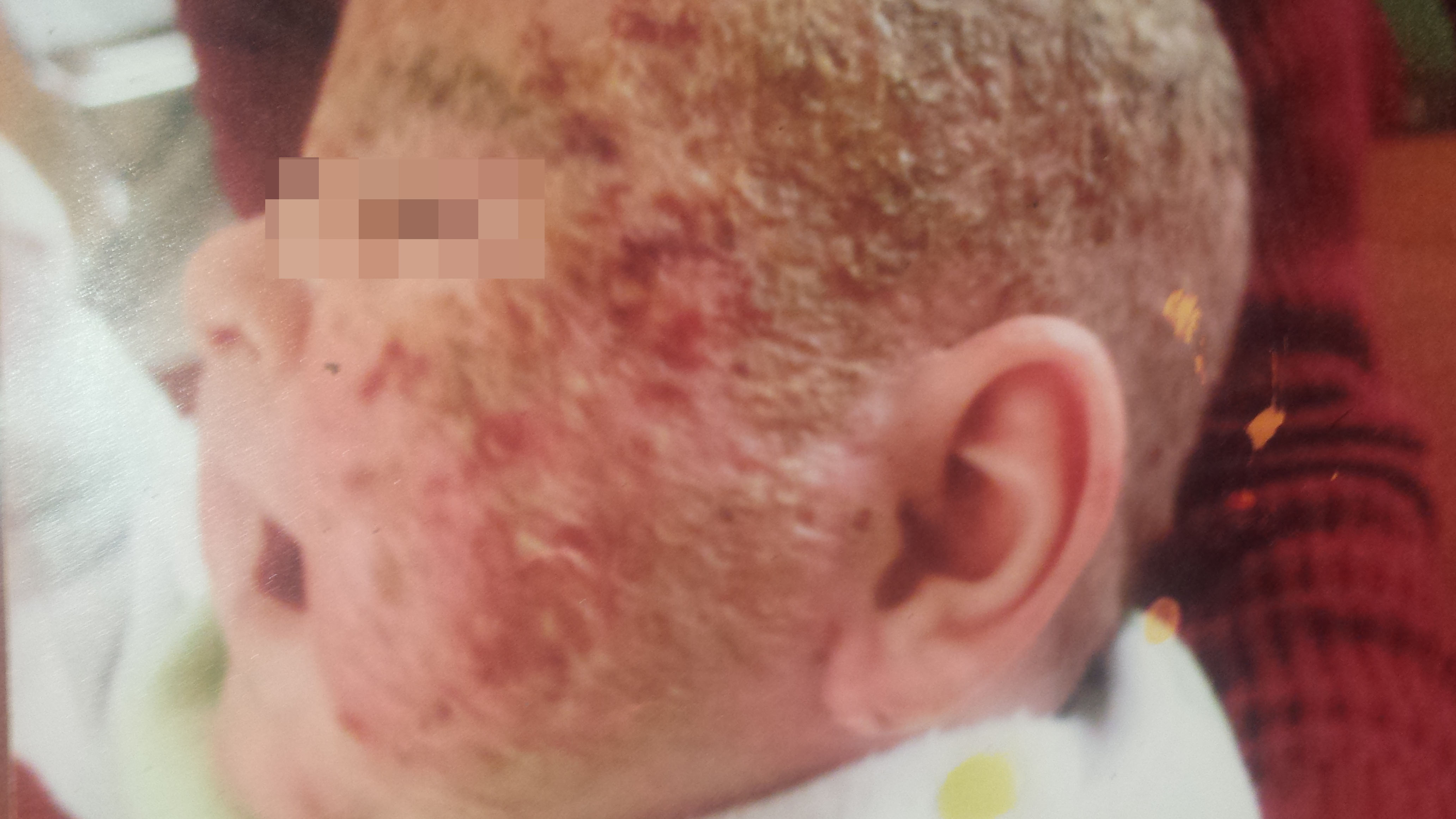 contact dermatitis due to topical steroids