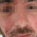 London-Dermatitis-treatment-002-before-1