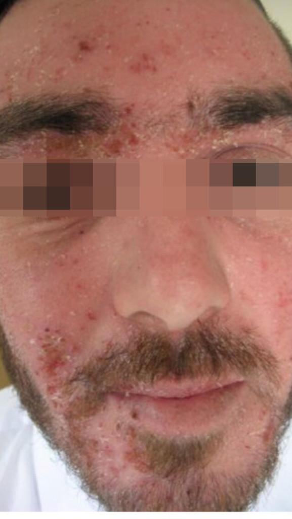 London-Dermatitis-treatment-002-before-1