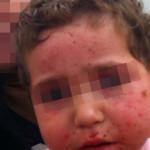 London-Dermatitis-treatment-003-before-1