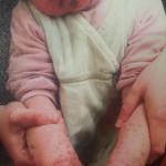 London-Dermatitis-treatment-003-before1-1